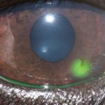 ulcera corneale superficiale